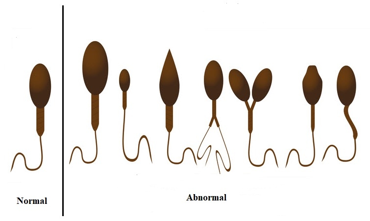 Sperm Morphology