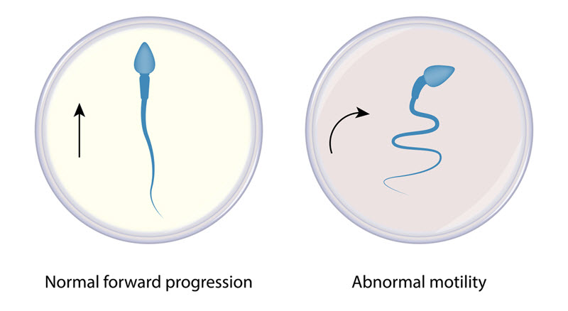 Sperm Motility