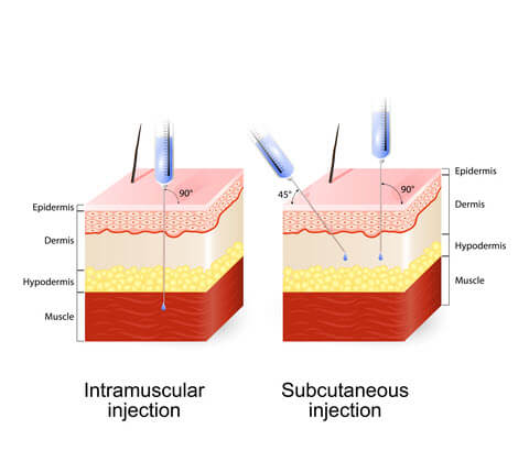 subcutaneous intramuscular injection