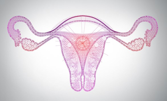 What you need to know about Ovarian Hyperstimulation Syndrome  (OHSS)