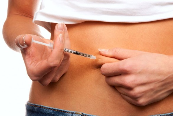 IVF Stimulation Protocols