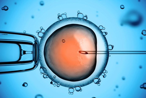 An Intro to Intracytoplasmic Sperm Injection (ICSI)